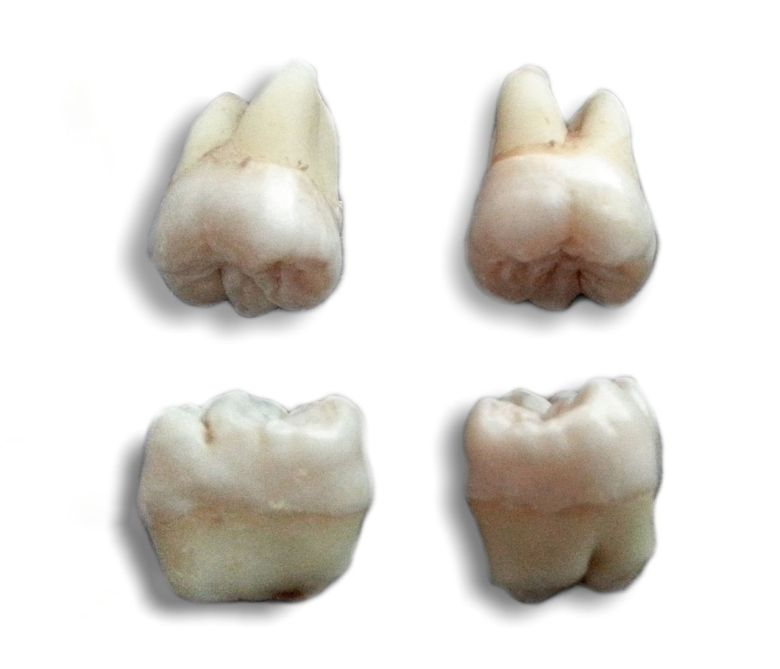 A wisdom tooth or third molar is one of the three molars per Quadrant of the human dentition. Most adults have four wisdom teeth (a third molar in each of the four quadrants), but it is possible to have fewer or more.  Photo by Hic et nunc